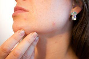 La téléexpertise dermatologique ou comment bénéficier de l'expertise d'un dermatologue chez votre médecin traitant